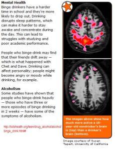 teens-brain-after-drinking