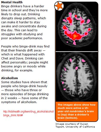 teens-brain-after-drinking